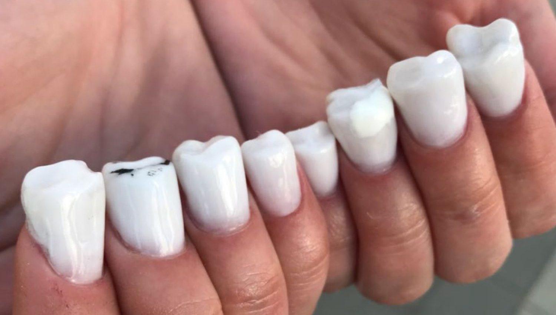 Molar Teeth Nail Art - Simplemost